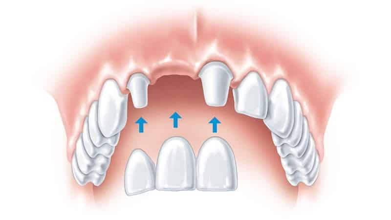 зубной мост на 3 зуба фото
