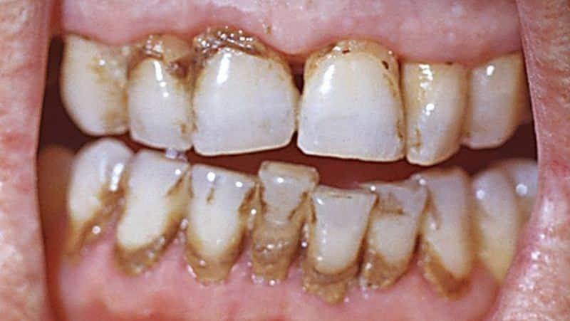 можно ли курить после лечения удаления зуба мудрости когда
