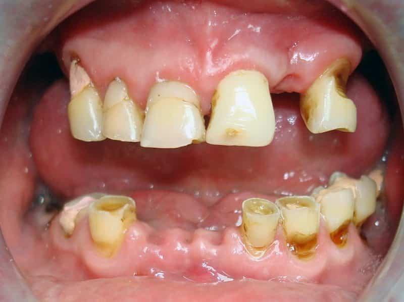 почему нельзя курить после удаления зуба можно