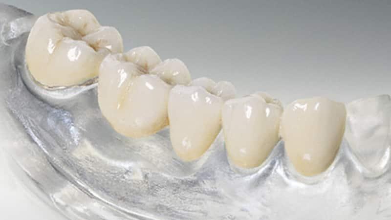 мягкий зубной протез съемный