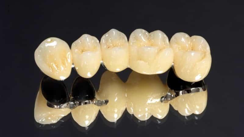 несъемные мостовидные зубные протезы фото