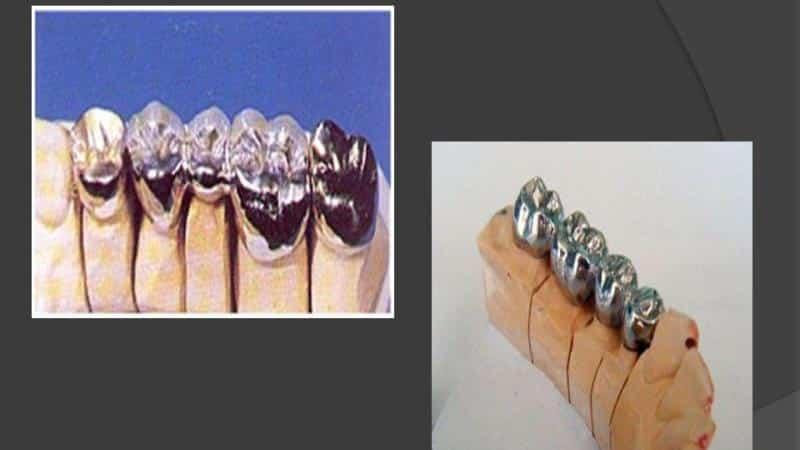 изготовление цельнолитого мостовидного протеза