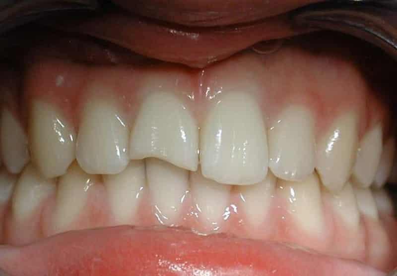 откололся зуб что делать