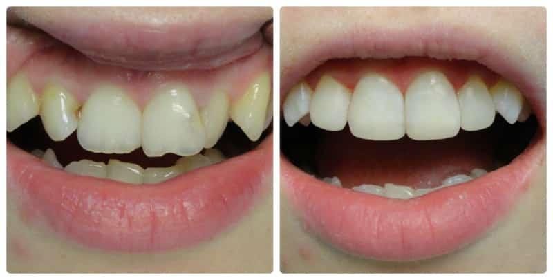 Что делать если откололся кусочек переднего зуба