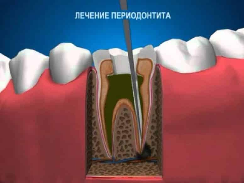 Схематичное изображение процесса лечения периодонтита