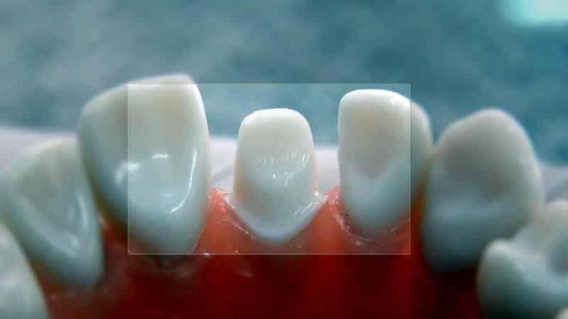 препарирование зуба под металлокерамическую коронку видео
