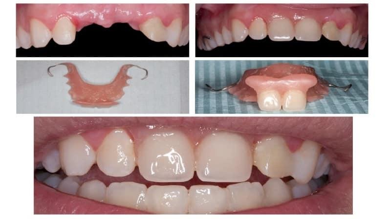протезирование передних зубов фото до и после