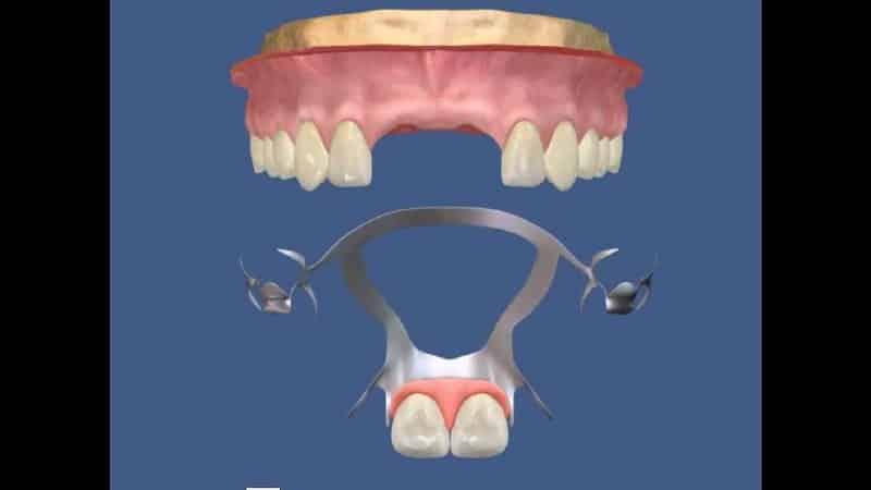 протезирование передних верхних зубов фото