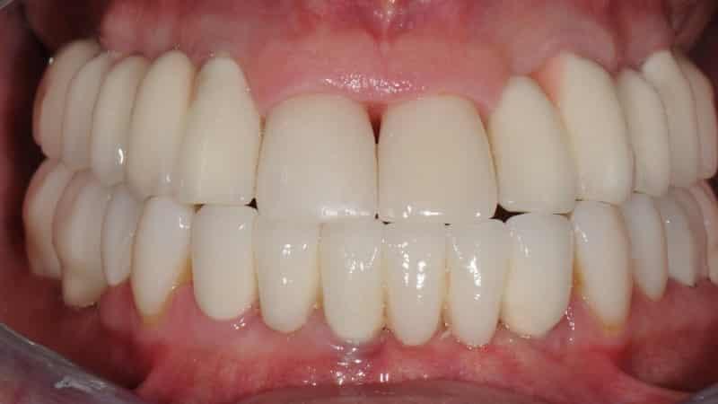 металлокерамика на два отсутствующих передних зуба протезирование