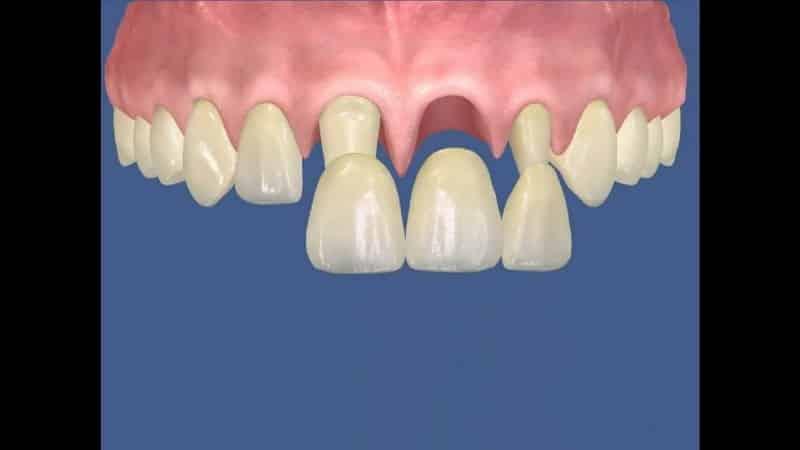 протезирование передних нижних зубов