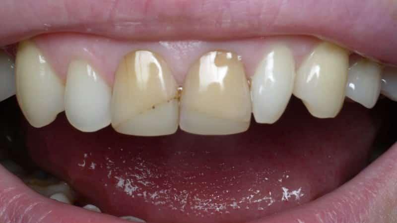протезирование после удаления зуба сроки