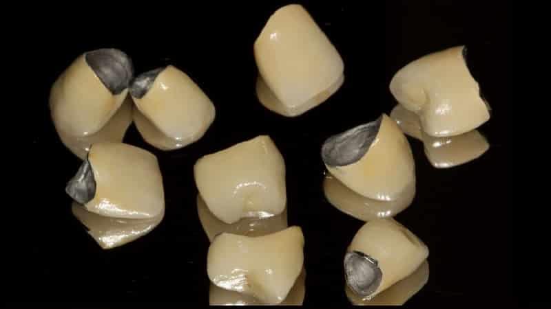 когда можно протезировать после удаления зуба
