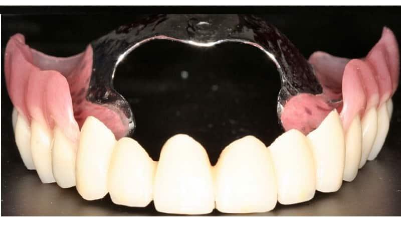 протезирование зубов при пародонтозе виды какой протез лучше фото