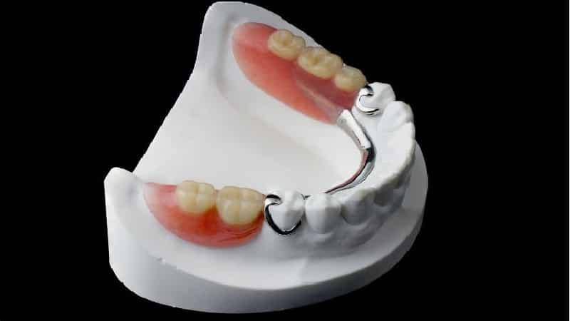 какие лучше съемные зубные протезы на нижнюю челюсть отзывы