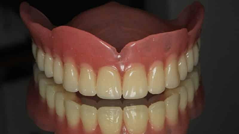 ᐉ Какие съемные протезы лучше на верхнюю челюсть? Протезирование верхнего зубного ряда