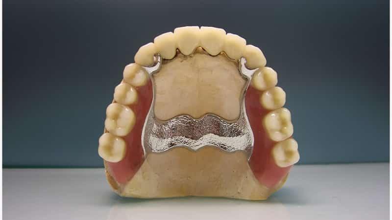 съемный протез на верхнюю челюсть отзывы какой материал лучше