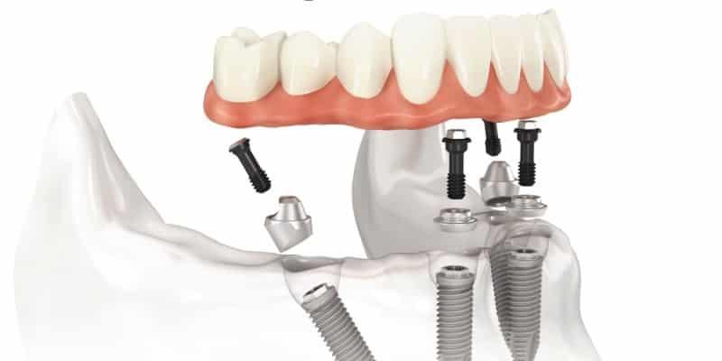 зубная имплантация зубное протезирование