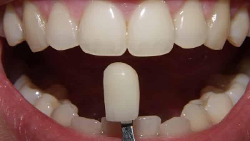 современные несъемные зубные протезы нового поколения