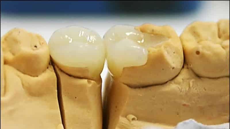 качественные зубные виниры