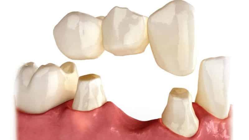 несъемные зубные протезы при полном отсутствии зубов