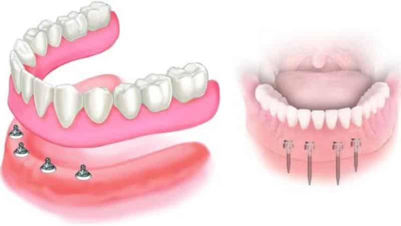 виды протезирования зубов плюсы и минусы при полном отсутствии зубов