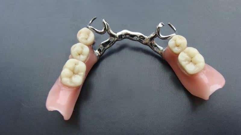 современное протезирование зубов новые технологии на штифтах
