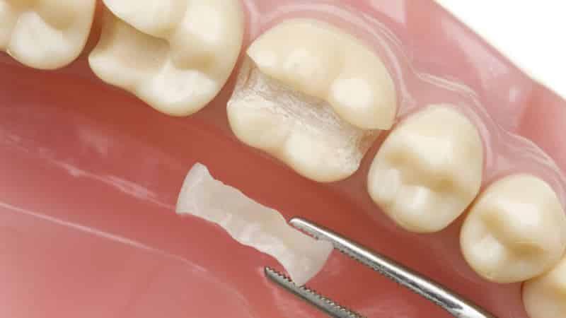 способы протезирования зубов при их отсутствии