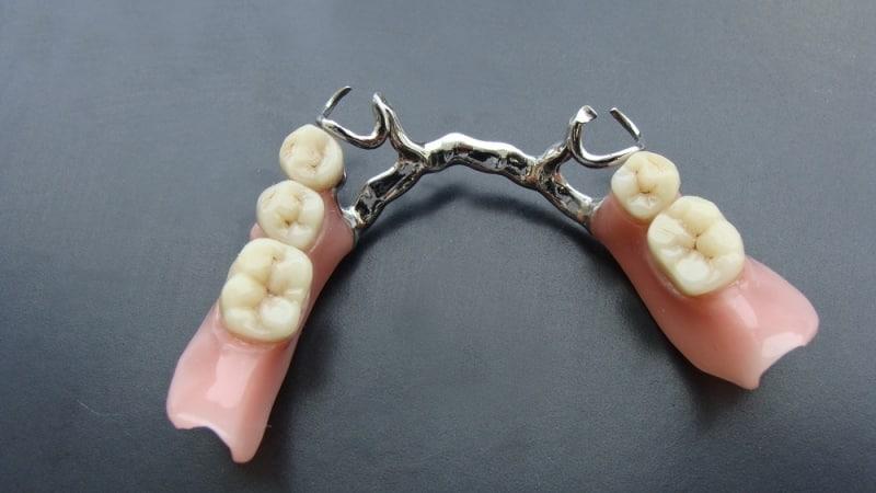 какие виды зубных протезов существуют и их стоимость