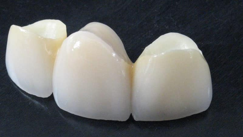 Мостовидные зубные протезы на основе оксида циркония