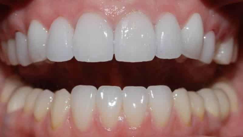 временный зуб после удаления