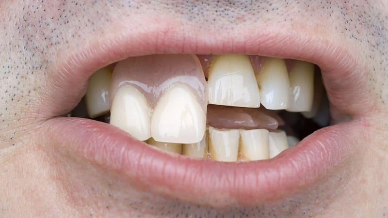 временные протезы на передние зубы