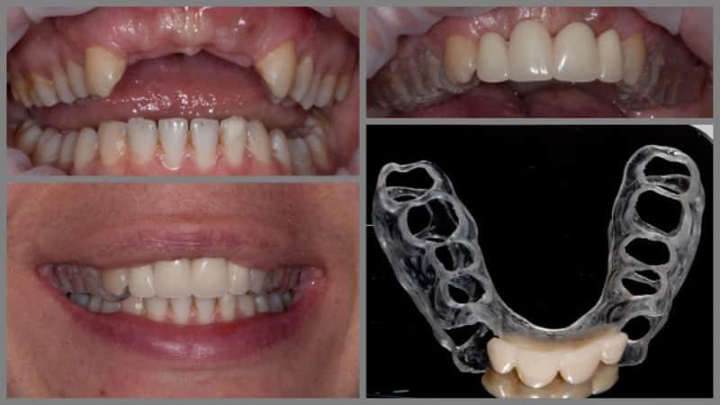 Как делают протезирование зуба после удаления