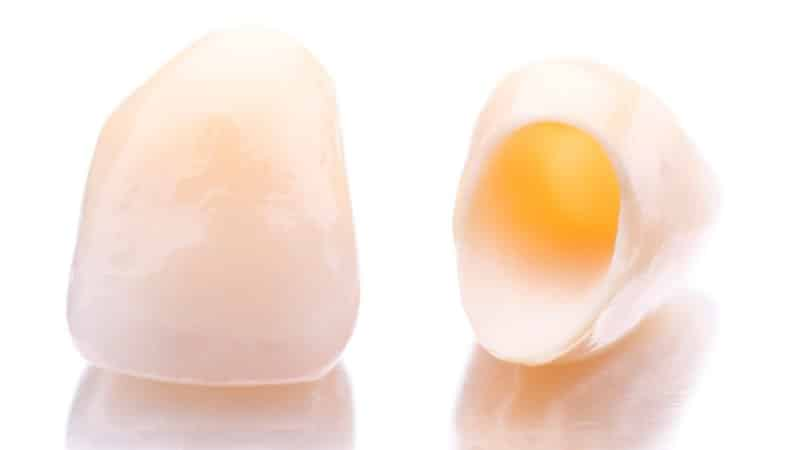 вставить передний зуб сколько стоит