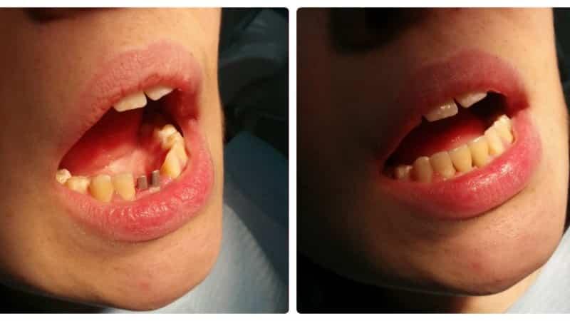 вставить зубы