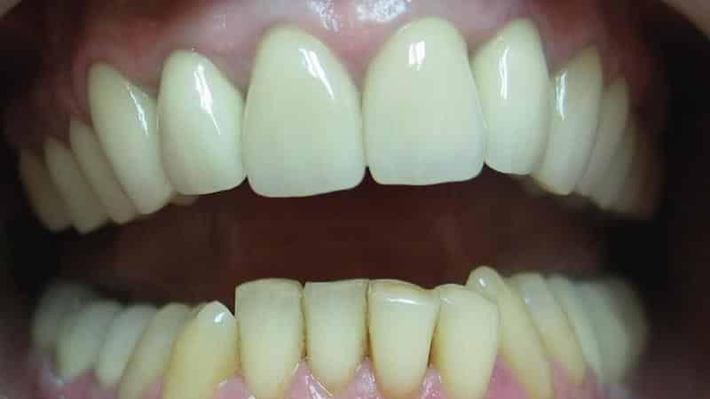 сколько стоит золотой зуб