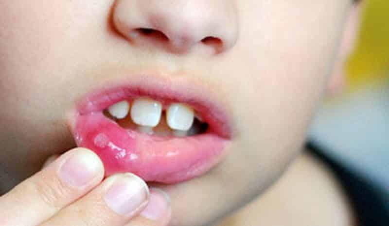 заразен ли стоматит у детей взрослых заразен или нет
