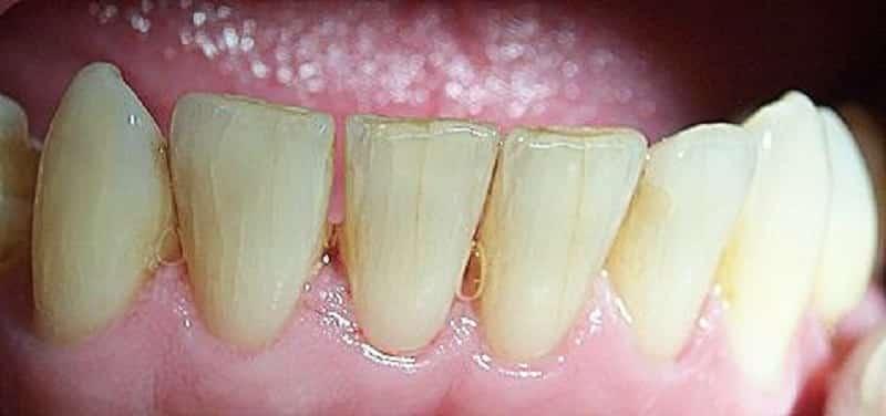 Почему запломбированный зуб реагирует на горячее и холодное