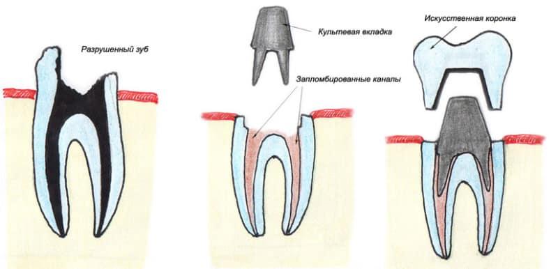 Если зуб реагирует на холодное и горячее после пломбирования