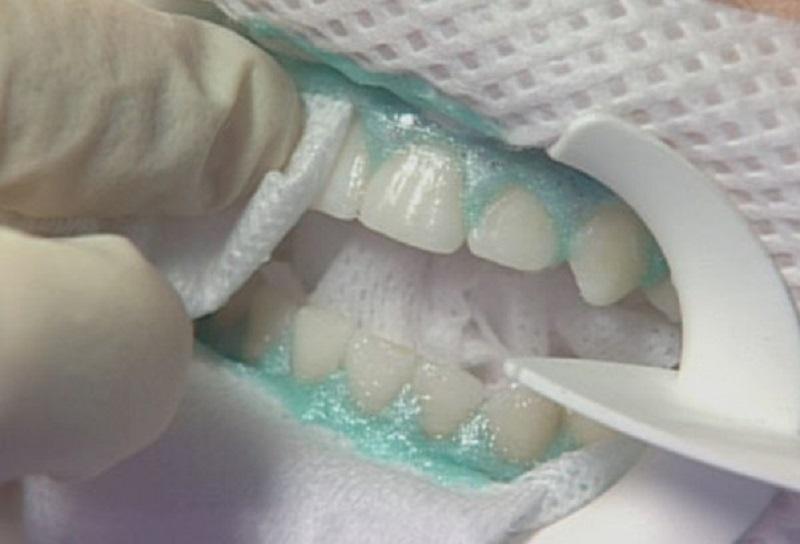 Зуб реагирует на горячее после лечения что делать