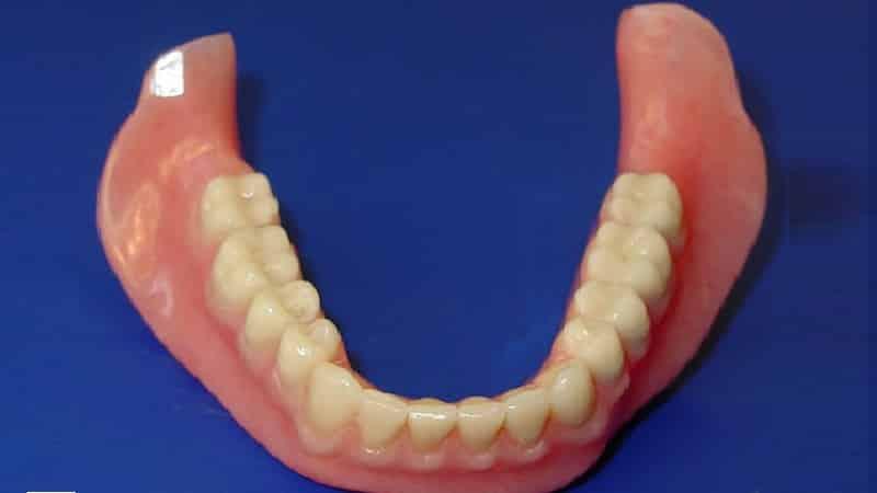 полиуретановый зубной протез фото