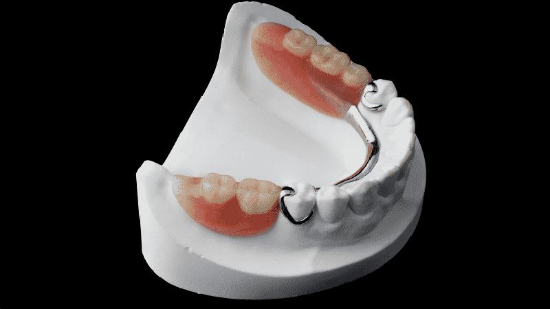 съемные зубные протезы без неба при полном отсутствии зубов