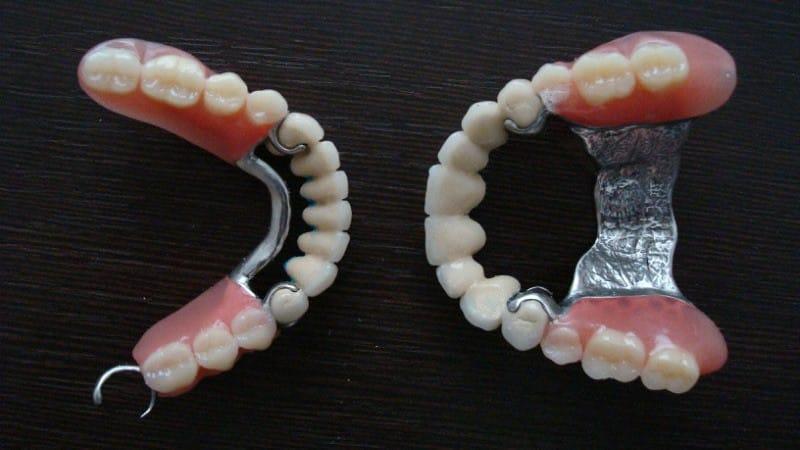 зубные протезы частичные съемные