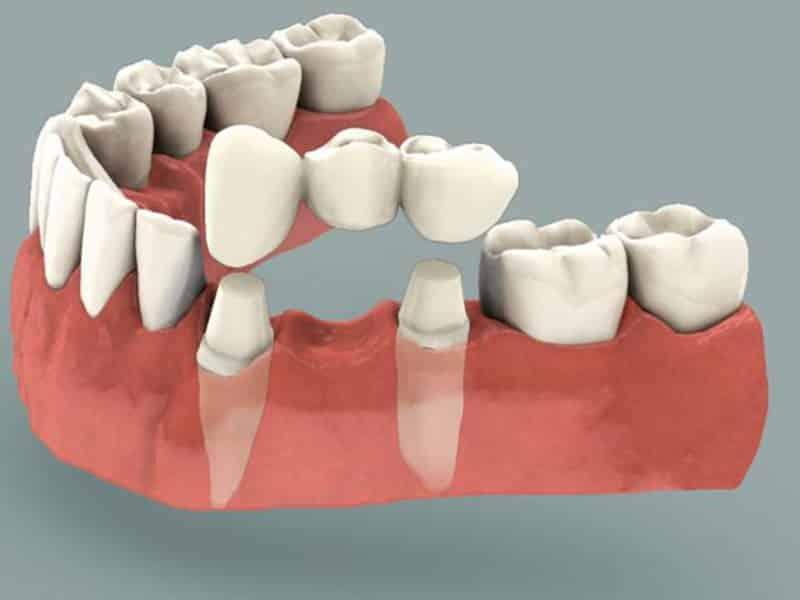 Какие зубы лучше вставить