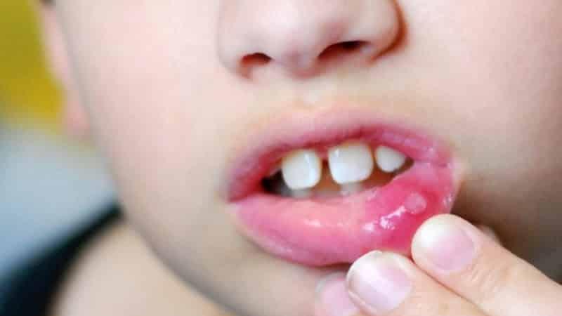 афтозный стоматит у детей симптомы и лечение