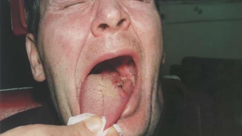 Рак корня языка симптомы