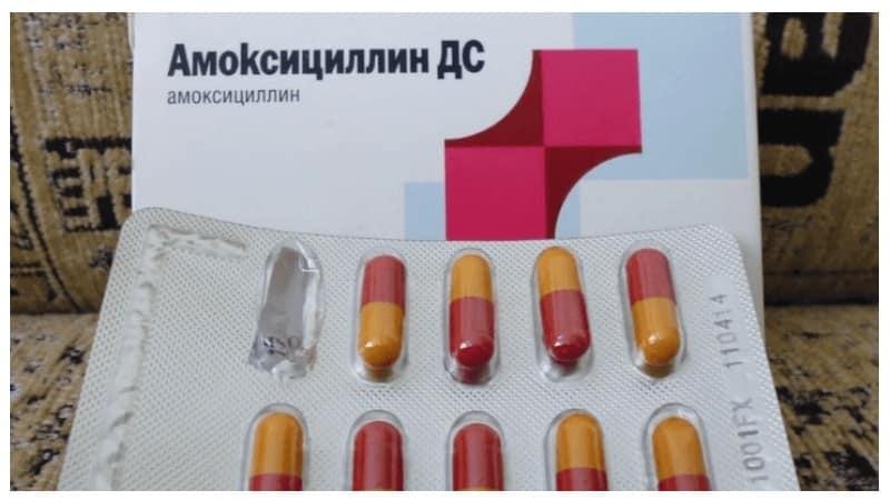 антибиотик при тонзиллите