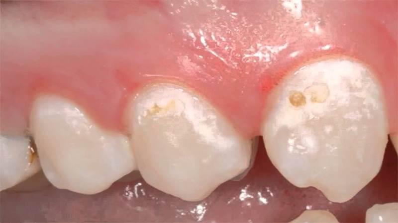 у ребенка появилось белое пятно на зубе