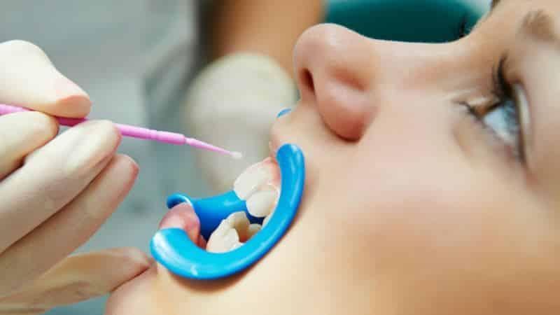 почему на зубах появляются белые пятна у взрослых