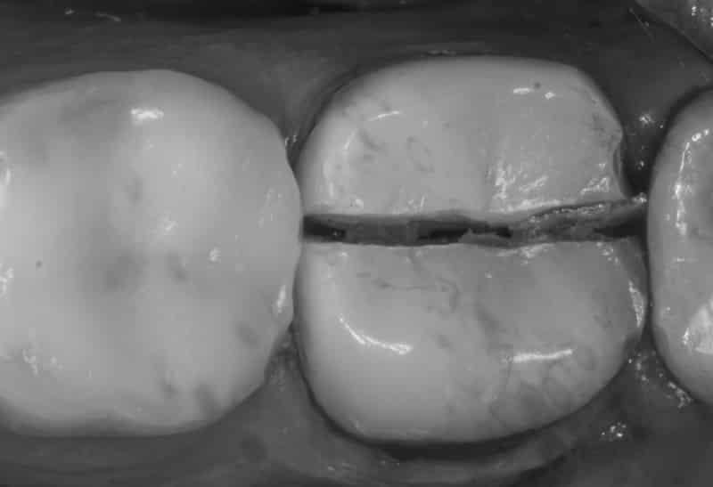 что делать, если зуб раскололся пополам