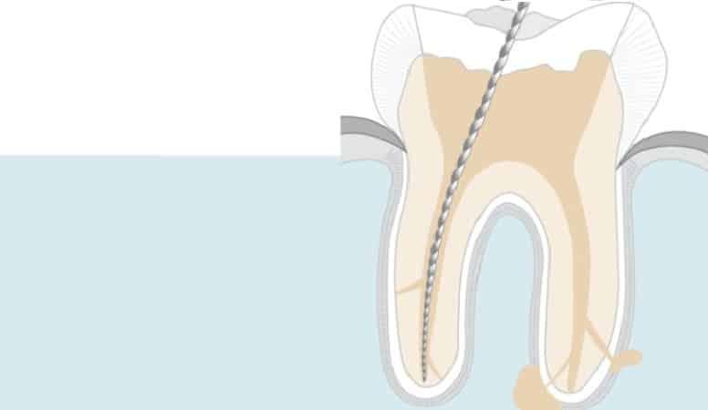 депульпирование зуба это